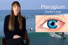 Proč nosit sluneční brýle na kite